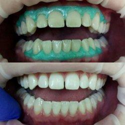 Послуга відбілювання зубів (Вінниця)